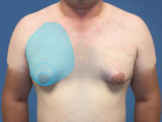 Docteur Poiret Blépharoplastie paupière inférieure voie conjonctivale