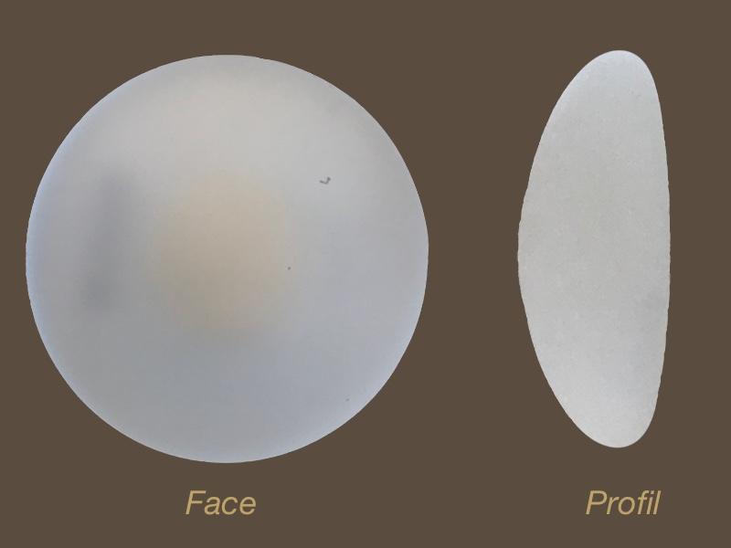 Docteur Poiret Blépharoplastie paupière supérieure