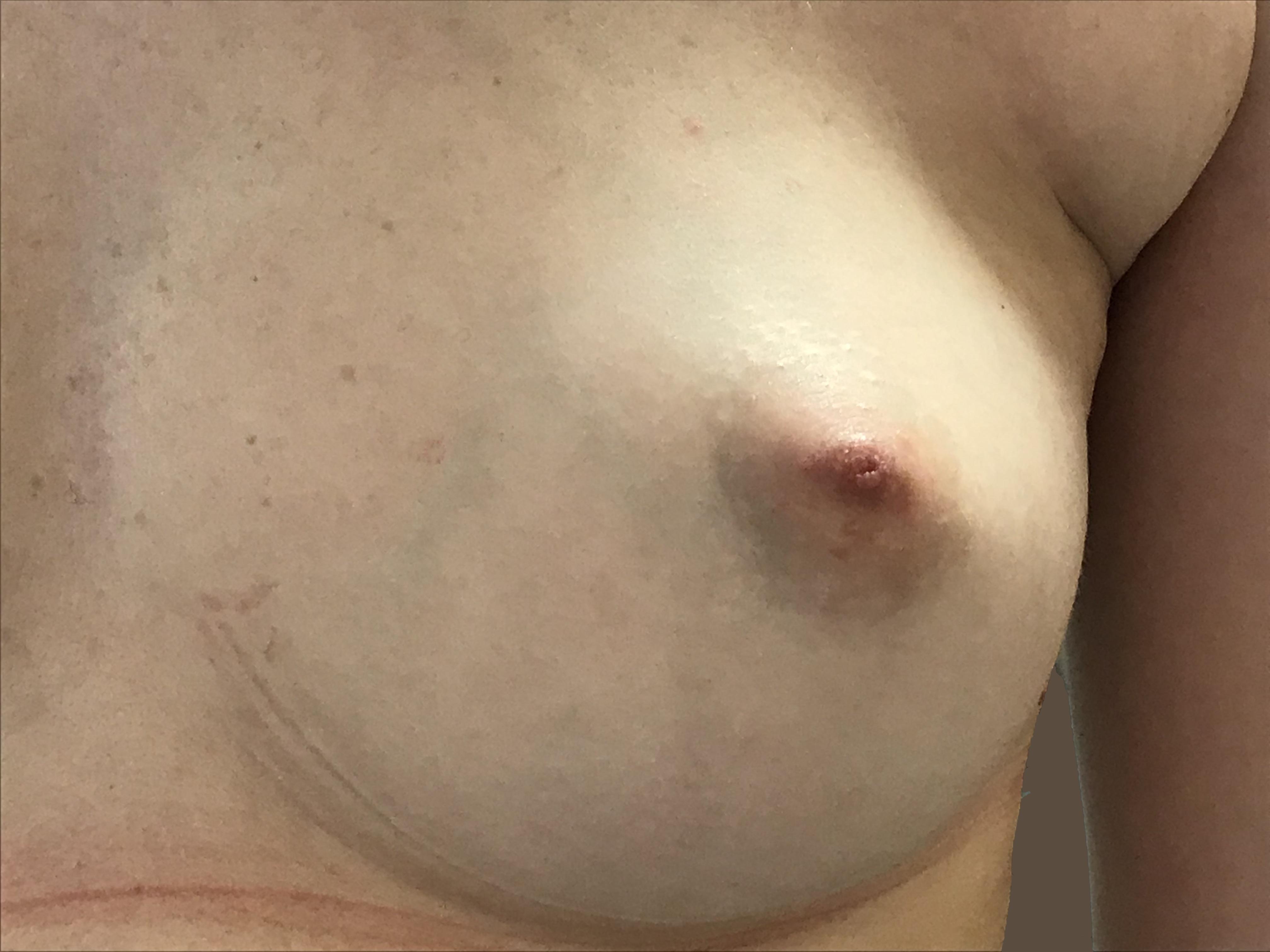 Docteur Poiret Blépharoplastie paupière inférieure