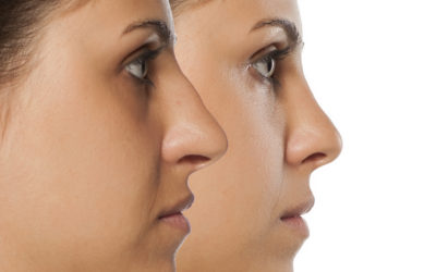La rhinoplastie : évolution vers une préservation